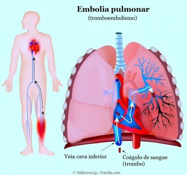Nos sanguíneos pulmões coágulos dissolver